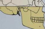 Как устроена челюсть человека