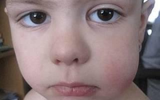У ребенка опухла щека с одной стороны