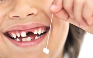 Почему шатается коренной зуб