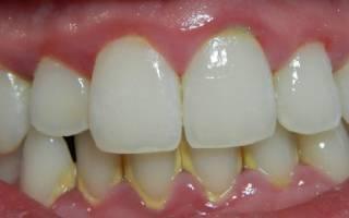 Каменный налет на зубах