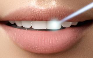 Лечение зубов лазером детям