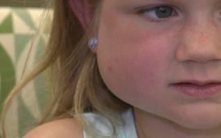 Опухла щека после лечения зуба у ребенка