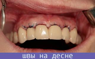 Зашивают ли десну после удаления зуба мудрости