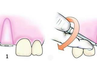 Надо ли удалять корень зуба