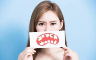 Обработка зубов фтором
