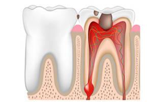 Воспаление корня зуба симптомы и лечение