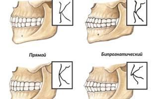 Что такое прикус зубов