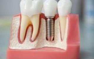 Зубные имплантанты за и против