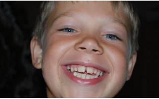 У ребенка большая щель между передними зубами