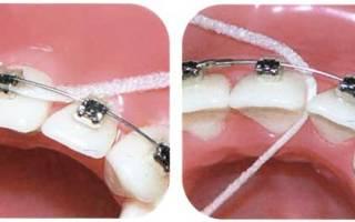 Нить для зубов