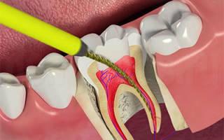 Болит зуб после депульпации