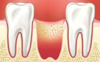 Как ухаживать после удаления зуба