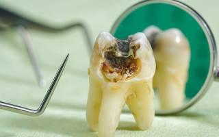 От чего гниют зубы