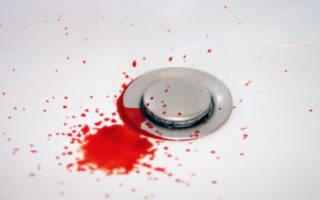 Кровь из десен при чистке зубов