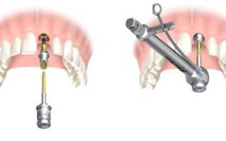Сколько болит после имплантации зуба