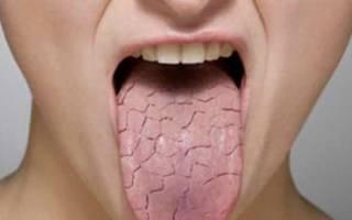 Складчатый глоссит лечение