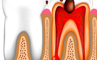 Оголенный нерв в зубе