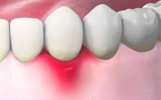 Чем лечить воспаление десны вокруг зуба