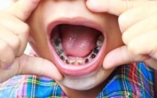 Гниют молочные зубы у ребенка