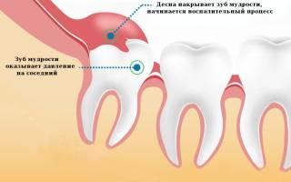 Зуб мудрости не может прорезаться опухла десна