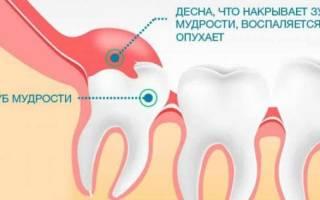 Сколько болит зуб мудрости когда прорезается