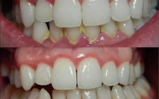 Зубная паста против зубного камня