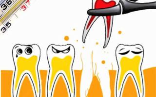 Если после удаления зуба поднялась температура