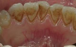 От чего появляются камни на зубах