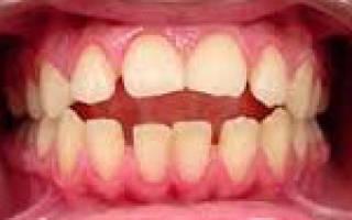 Ортодонтия открытый прикус