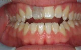 Почему болит зуб если нерв удален давно