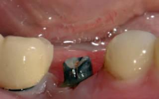 Имплант титановый
