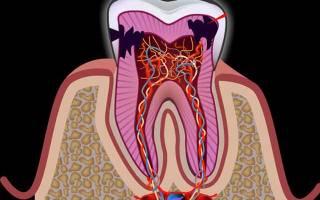 Лечение нерва зуба