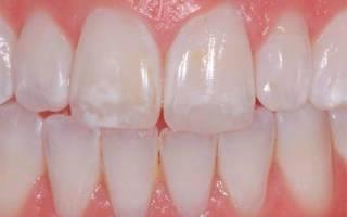 Белые пятна на зубах лечение