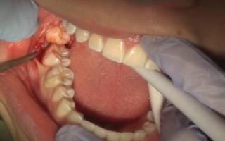 Удалили зуб мудрости сколько будет болеть челюсть