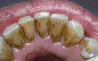 Зубной камень причины возникновения