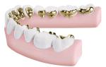 На сколько зубов ставят брекеты