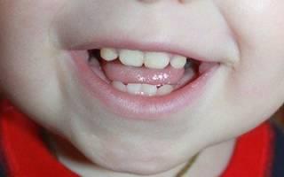 Желтый налет на зубах причины