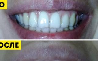 Очищение зубов в домашних условиях