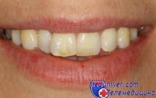 Темная эмаль зубов