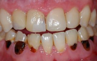 Гниение зуба