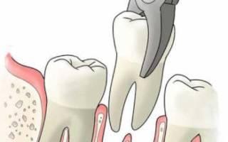 Сколько будет болеть зуб после удаления