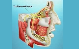 Поражение тройничного нерва симптомы