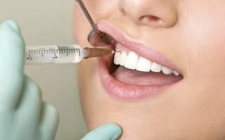 Линкомицина гидрохлорид в стоматологии