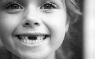 Когда у детей начинают выпадать молочные зубы