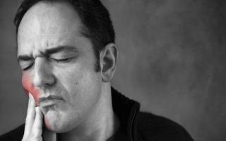 Невралгия зубная