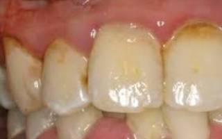 Как снимают зубной камень