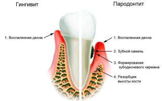Воспаление в десне под зубом