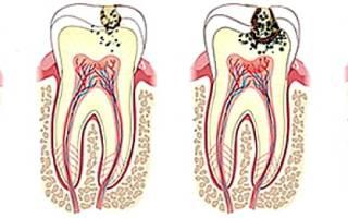 Аспирин помогает от зубной боли