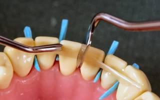 Что такое шинирование зубов