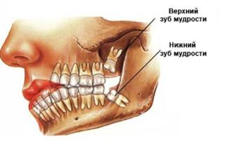 Удаление 8 зуба сверху